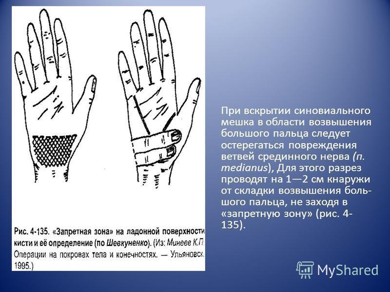 При вскрытии синовиального мешка в области возвышения большого пальца следует остерегаться повреждения ветвей срединного нерва (п. medianus), Для этого разрез проводят на 12 см кнаружи от складки возвышения боль шого пальца, не заходя в «запретную