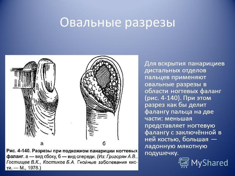 Овальные разрезы Для вскрытия панарициев дистальных отделов пальцев применяют овальные разрезы в области ногтевых фаланг (рис. 4-140). При этом разрез как бы делит фалангу пальца на две части: меньшая представляет ногтевую фалангу с заключённой в не