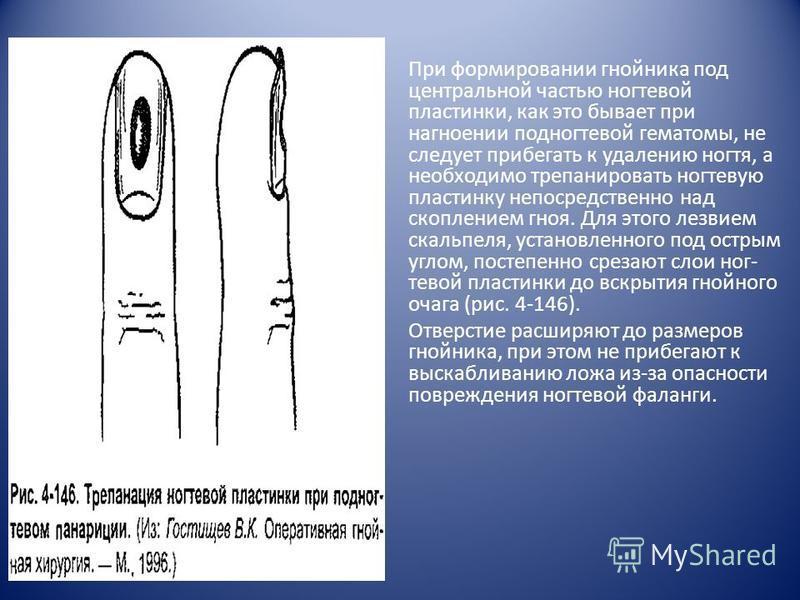 При формировании гнойника под центральной частью ногтевой пластинки, как это бывает при нагноении подногтевой гематомы, не следует прибегать к удалению ногтя, а необходимо трепанировать ногтевую пластинку непосредственно над скоплением гноя. Для