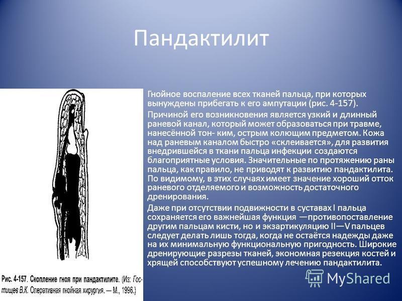 Пандактилит Гнойное воспаление всех тканей пальца, при которых вынуждены прибегать к его ампутации (рис. 4-157). Причиной его возникновения является узкий и длинный раневой канал, который может образоваться при травме, нанесённой тон- ким, острым