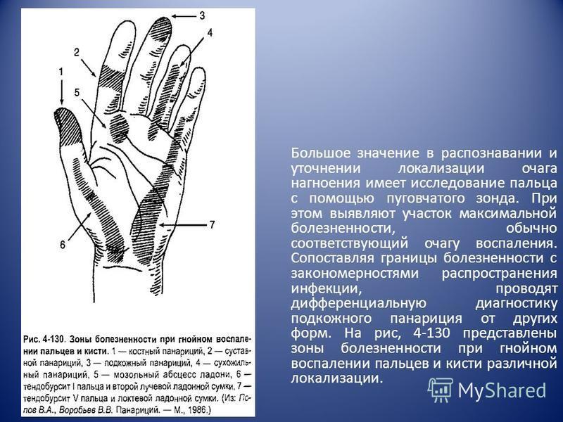 Большое значение в распознавании и уточнении локализации очага нагноения имеет исследование пальца с помощью пуговчатого зонда. При этом выявляют участок максимальной болезненности, обычно соответствующий очагу воспаления. Сопоставляя границы болез