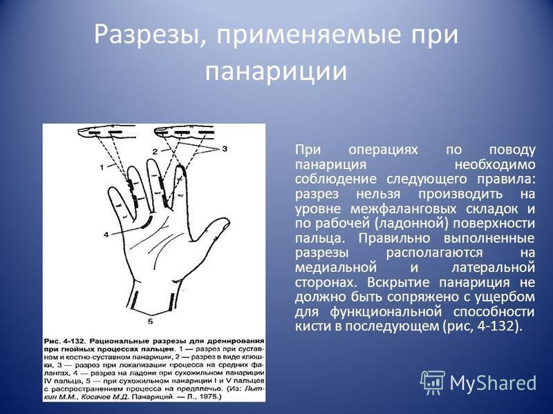 Разрезы, применяемые при панариции При операциях по поводу панариция необходимо соблюдение следующего правила: разрез нельзя производить на уровне межфаланговых складок и по рабочей (ладонной) поверхности пальца. Правильно выполненные разрезы распо