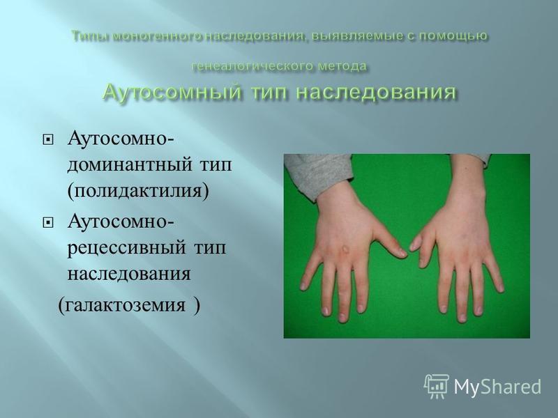 Аутосомно - доминантный тип ( полидактилия ) Аутосомно - рецессивный тип наследования ( галактоземия )