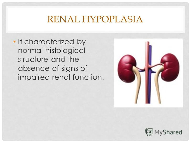 RENAL HYPOPLASIA It characterized by normal histological structure and the absence of signs of impaired renal function.