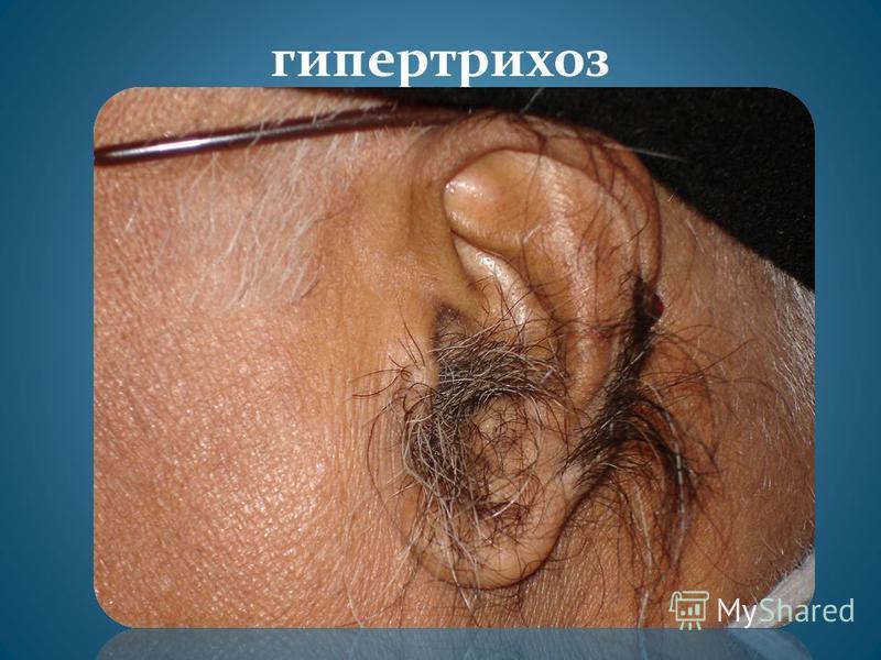 гипертрихоз