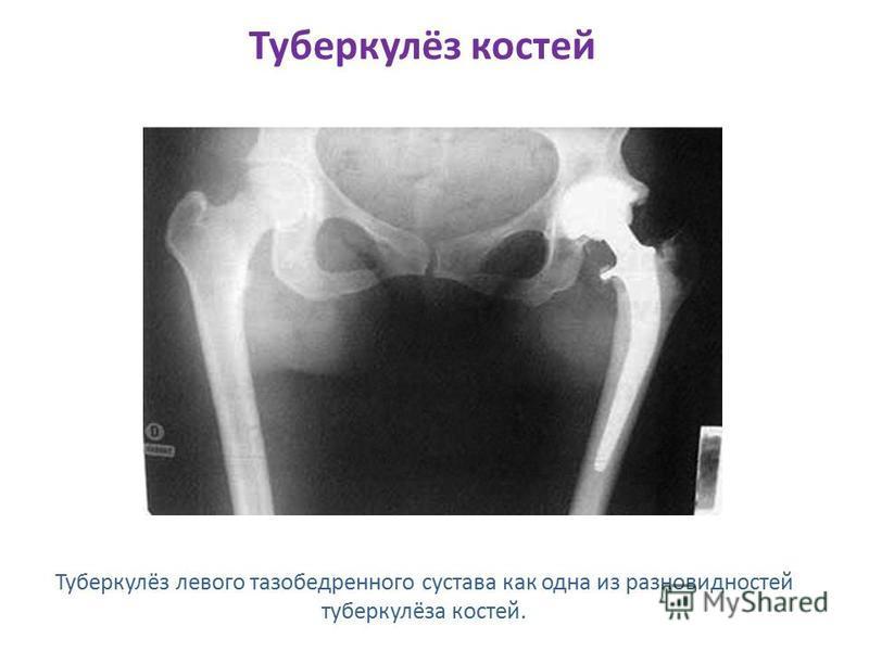 Туберкулёз костей Туберкулёз левого тазобедренного сустава как одна из разновидностей туберкулёза костей.