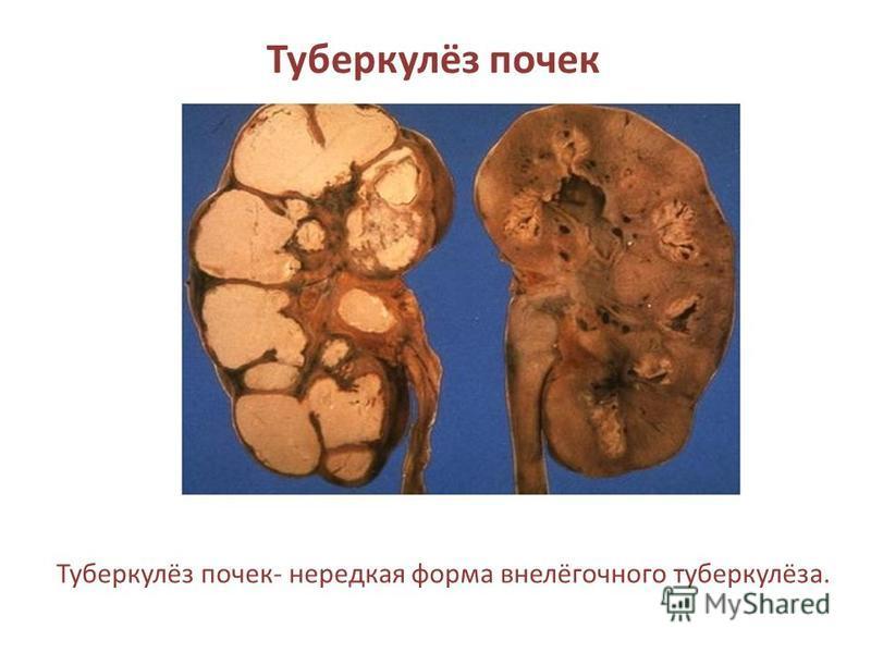Туберкулёз почек Туберкулёз почек- нередкая форма внелёгочного туберкулёза.