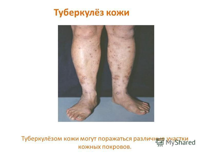 Туберкулёз кожи Туберкулёзом кожи могут поражаться различные участки кожных покровов.