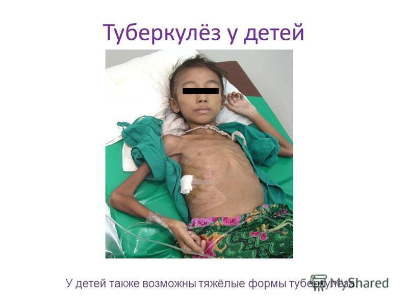 Туберкулёз у детей У детей также возможны тяжёлые формы туберкулёза.