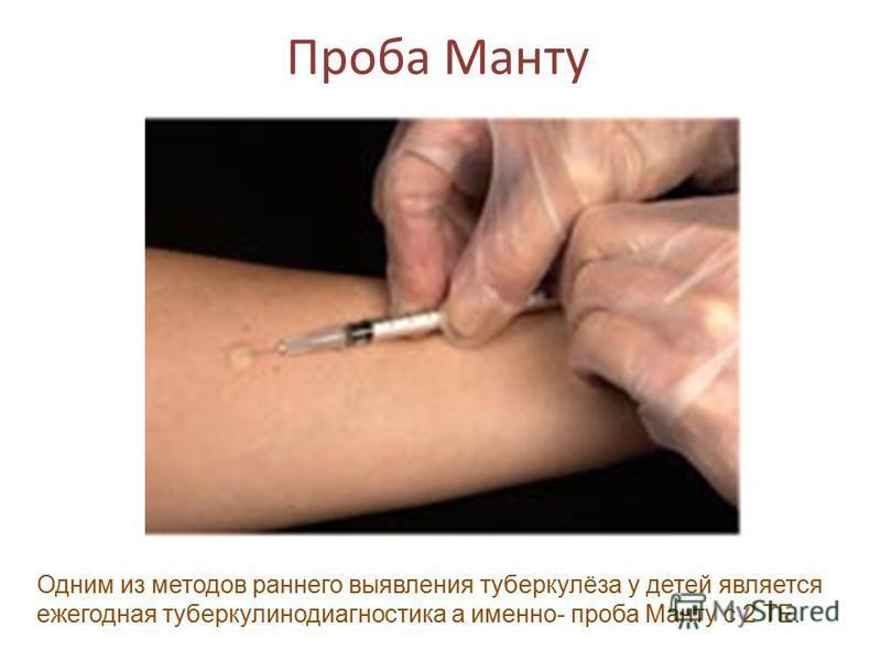 Проба Манту Одним из методов раннего выявления туберкулёза у детей является ежегодная туберкулинодиагностика а именно- проба Манту с 2 ТЕ.