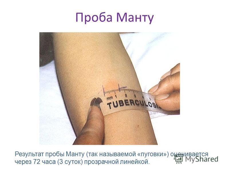 Проба Манту Результат пробы Манту (так называемой «пуговки») оценивается через 72 часа (3 суток) прозрачной линейкой.