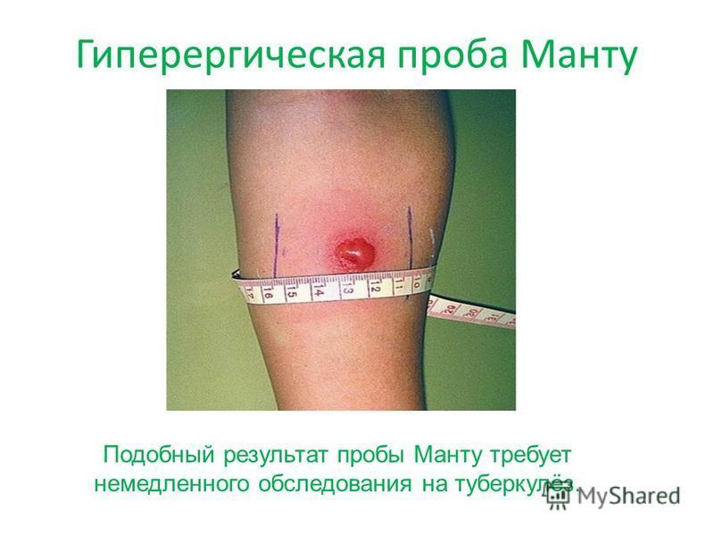 Гиперергическая проба Манту Подобный результат пробы Манту требует немедленного обследования на туберкулёз.
