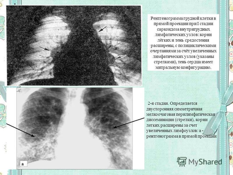 Рентгенограмма грудной клетки в прямой проекции при I стадии саркоидоза внутригрудных лимфатических узлов: корни лёгких и тень средостения расширены, с полициклическими очертаниями за счёт увеличенных лимфатических узлов (указаны стрелками), тень сер