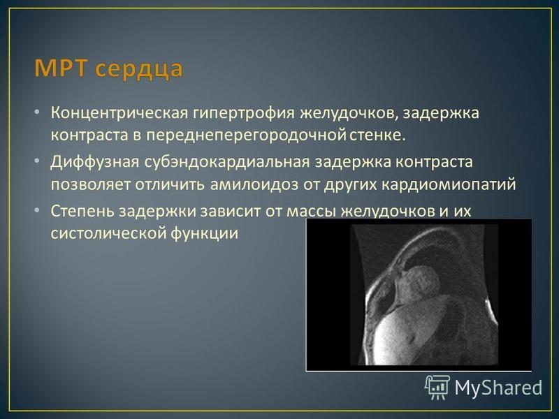 Концентрическая гипертрофия желудочков, задержка контраста в переднеперегородочной стенке. Диффузная субэндокардиальная задержка контраста позволяет отличить амилоидоз от других кардиомиопатий Степень задержки зависит от массы желудочков и их систоли