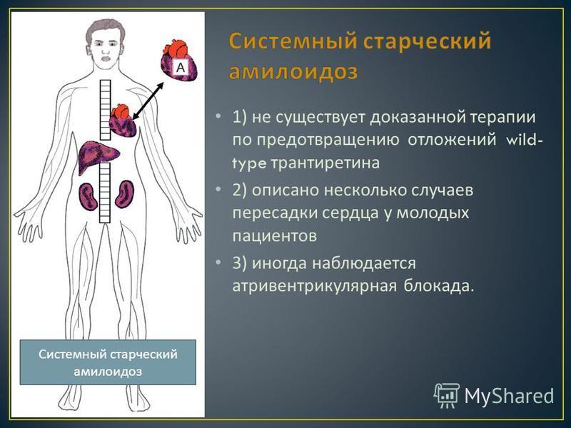 1) не существует доказанной терапии по предотвращению отложений wild- type трантиретина 2) описано несколько случаев пересадки сердца у молодых пациентов 3) иногда наблюдается атриовентрикулярная блокада. Системный старческий амилоидоз