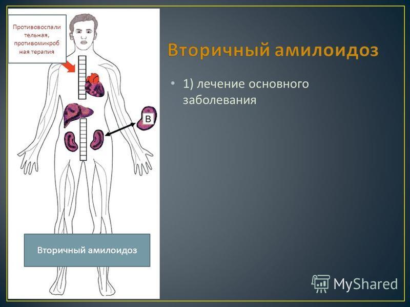 1) лечение основного заболевания Противовоспали тельная, противомикробная терапия Вторичный амилоидоз