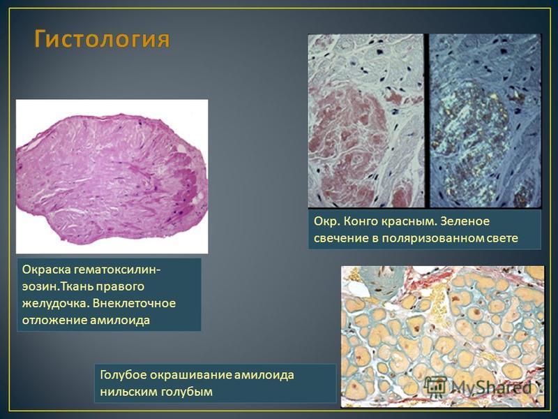Окраска гематоксилин - эозин. Ткань правого желудочка. Внеклеточное отложение амилоида Голубое окрашивание амилоида нильским голубым Окр. Конго красным. Зеленое свечение в поляризованном свете