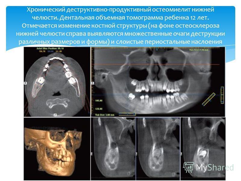 Хронический деструктивно-продуктивный остеомиелит нижней челюсти. Дентальная объемная томограмма ребенка 12 лет. Отмечается изменение костной структуры (на фоне остеосклероза нижней челюсти справа выявляются множественные очаги деструкции различных р