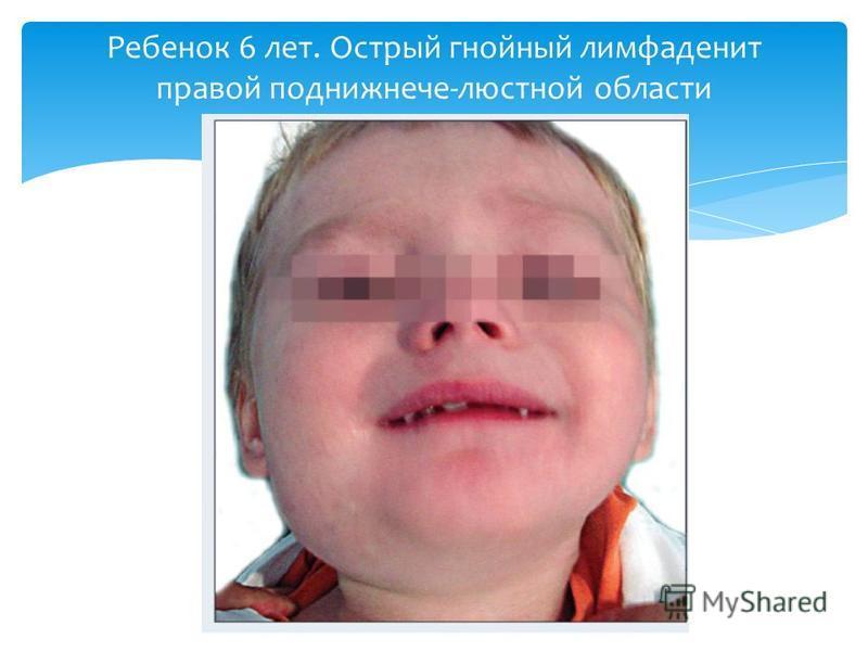 Ребенок 6 лет. Острый гнойный лимфаденит правой поднижнече-люстной области