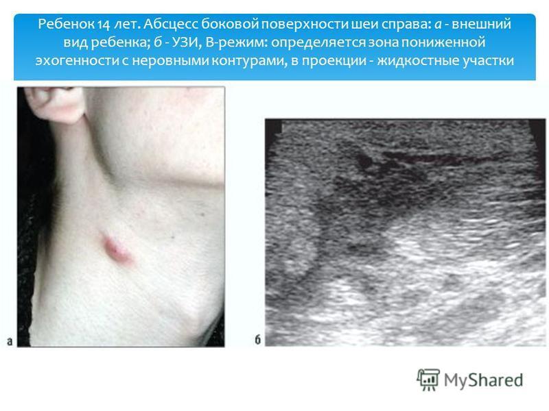 Ребенок 14 лет. Абсцесс боковой поверхности шеи справа: а - внешний вид ребенка; б - УЗИ, В-режим: определяется зона пониженной эхогенности с неровными контурами, в проекции - жидкостные участки