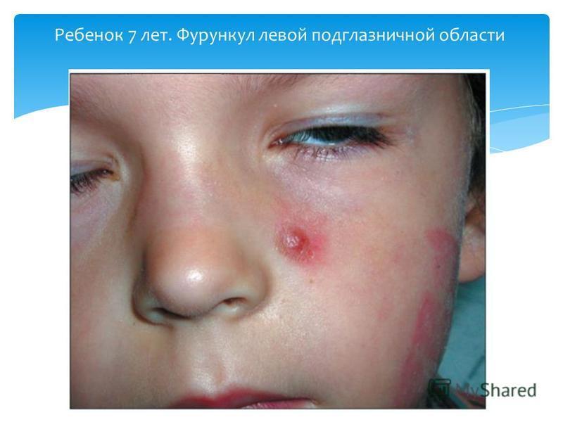 Ребенок 7 лет. Фурункул левой подглазничной области
