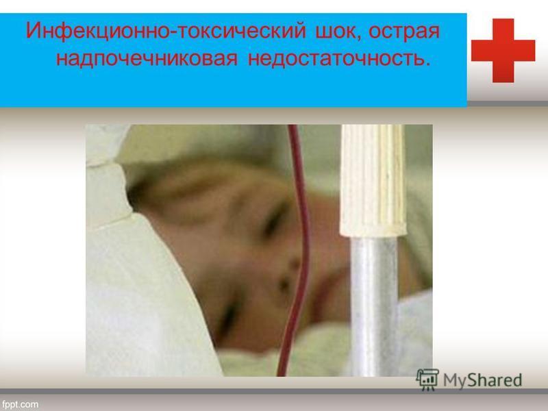 Инфекционно-токсический шок, острая надпочечниковая недостаточность.