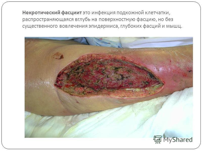 Некротический фасцит это инфекция под  кожной клетчатки, распространяющаяся вглубь на поверхностную фасцию, но без существенного во  влечения эпидермиса, глубоких фасций и мышц.