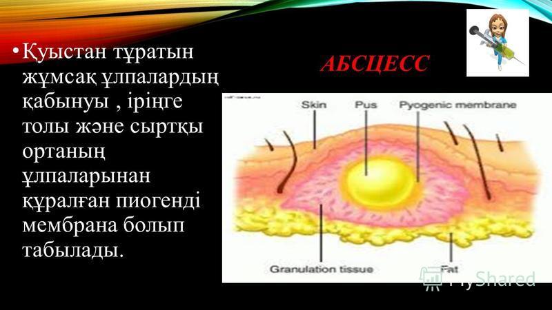АБСЦЕСС Қуыстан тұратын жұмсақ ұлпалардың қабынуы, іріңге толы және сыртқы ортаның ұлпаларынан құралған пиогенді мембрана болып табылады.