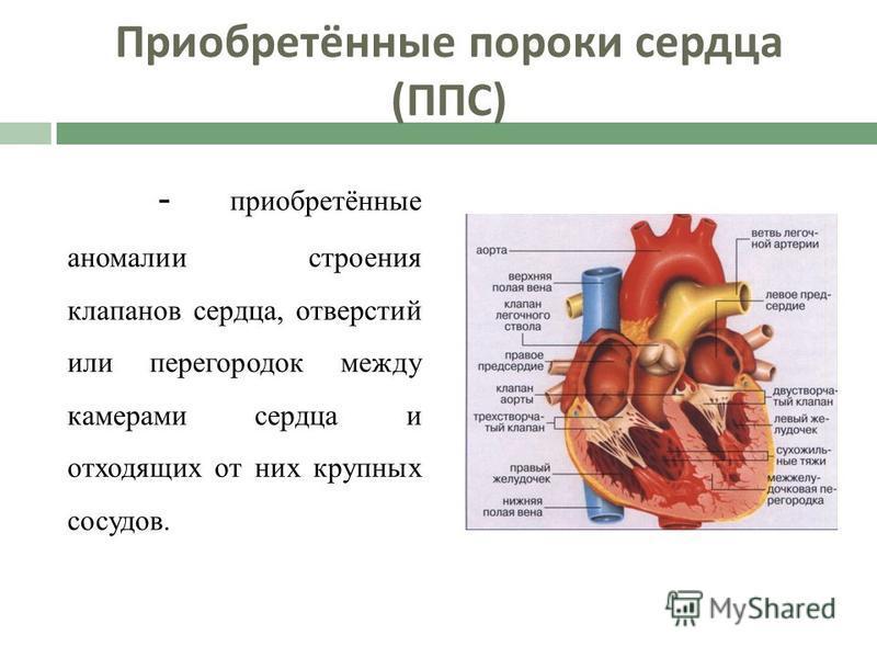 Приобретённые пороки сердца ( ППС ) - приобретённые аномалии строения клапанов сердца, отверстий или перегородок между камерами сердца и отходящих от них крупных сосудов.