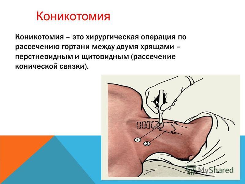 Коникотомия – это хирургическая операция по рассечению гортани между двумя хрящами – перстневидным и щитовидным (рассечение конической связки). Коникотомия