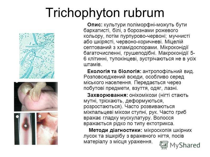 Trichophyton rubrum Опис: культури поліморфні-можуть бути бархатисті, білі, з борознами рожевого кольору, потім пурпурово-червоні; мучнисті або шкірясті, червоно-коричневі. Міцелій септований з хламідоспорами. Мікроконідії багаточисленні, грушеподібн