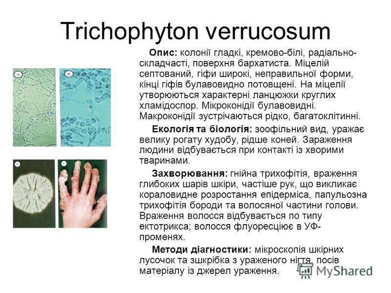 Trichophyton verrucosum Опис: колонії гладкі, кремово-білі, радіально- складчасті, поверхня бархатиста. Міцелій септований, гіфи широкі, неправильної форми, кінці гіфів булавовидно потовщені. На міцелії утворюються характерні ланцюжки круглих хламідо