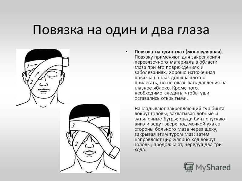 Повязка на один и два глаза Повязка на один глаз (монокулярная). Повязку применяют для закрепления перевязочного материала в области глаза при его повреждениях и заболеваниях. Хорошо наложенная повязка на глаз должна плотно прилегать, но не оказывать