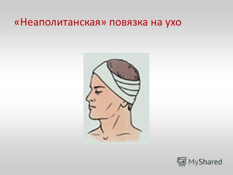 «Неаполитанская» повязка на ухо