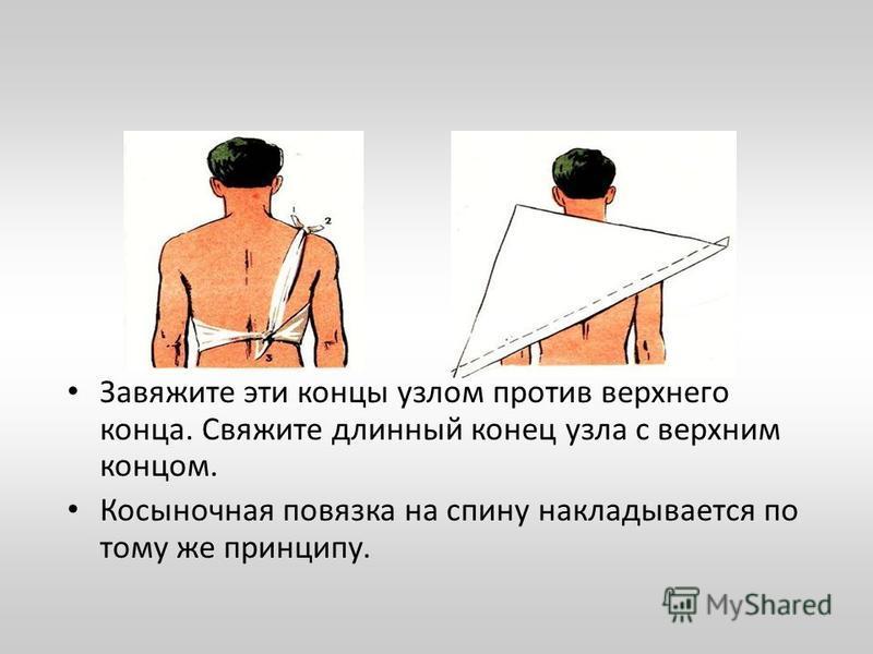Завяжите эти концы узлом против верхнего конца. Свяжите длинный конец узла с верхним концом. Косыночная повязка на спину накладывается по тому же принципу.