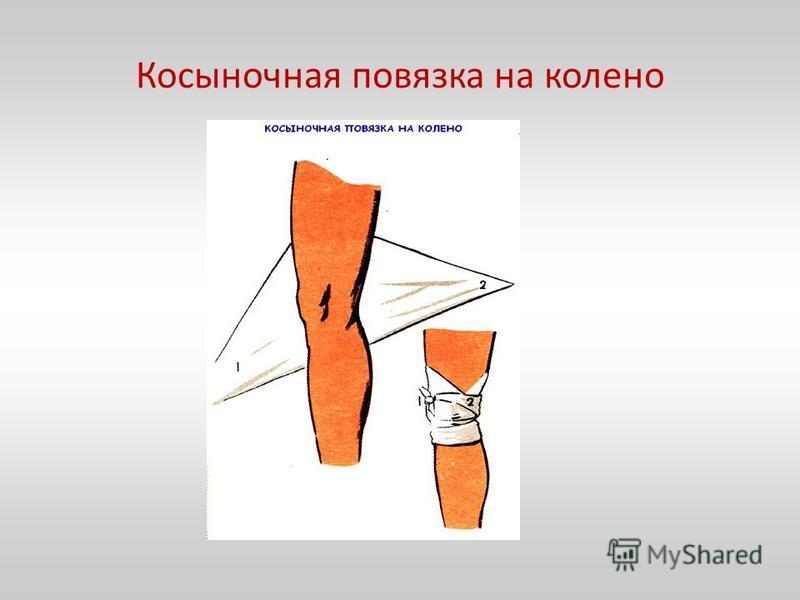 Косыночная повязка на колено
