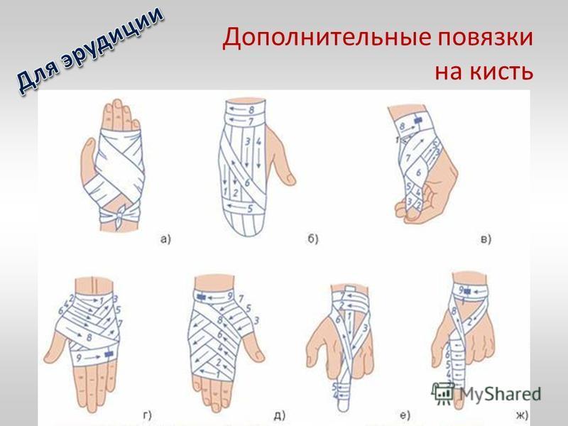 Дополнительные повязки на кисть