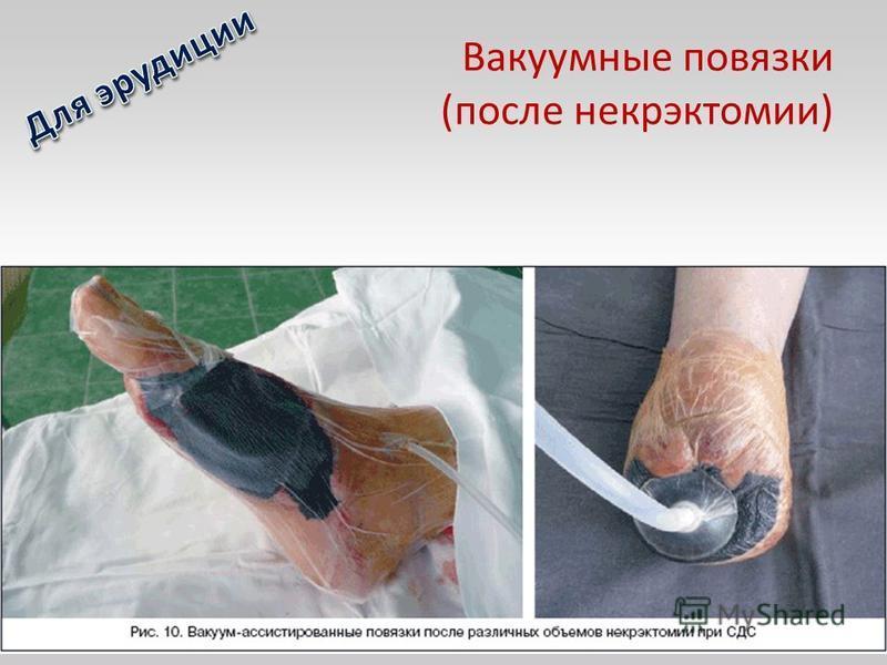 Вакуумные повязки (после некрэктомии)