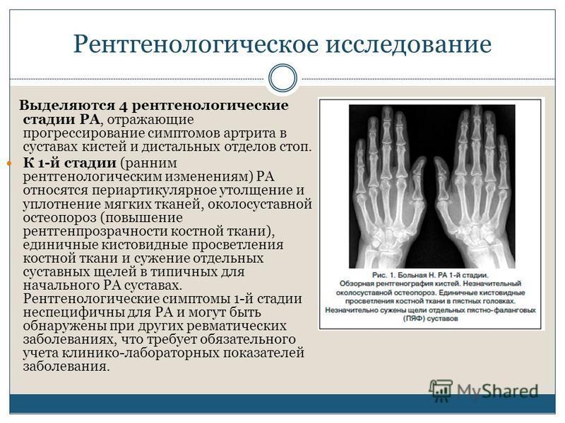 Рентгенологическое исследование Выделяются 4 рентгенологические стадии РА, отражающие прогрессирование симптомов артрита в суставах кистей и дистальных отделов стоп. К 1-й стадии (ранним рентгенологическим изменениям) РА относятся периартикулярное ут