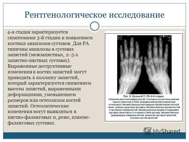 Рентгенологическое исследование 4-я стадия характеризуется симптомами 3-й стадии и появлением костных анкилозов суставов. Для РА типичны анкилозы в суставах запястий (межзапястных, 2–5-х запястно-пястных суставах). Выраженные деструктивные изменения
