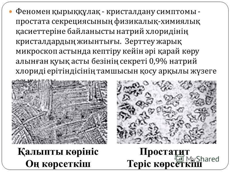 Феномен қырыққұлақ - кристалл дану симптомы - простата секрециясының физикалық - химиялық қасиеттеріне байланысты натрий хлоридінің кристалл дардың жиынтығы. Зерттеу жарық микроскоп астында кептіру кейін әрі қарай көру алынған қуық асты безінің секре