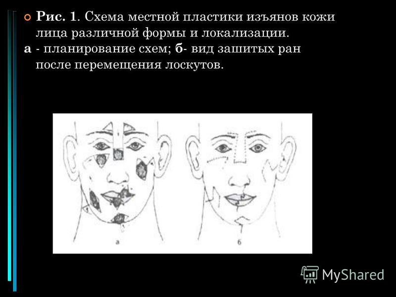 Рис. 1. Схема местной пластики изъянов кожи лица различной формы и локализации. а - планирование схем; б - вид зашитых ран после перемещения лоскутов.