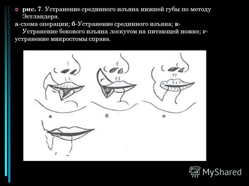 рис. 7. Устранение срединного изъяна нижней губы по методу Эстландера. а -схема операции; б -Устранение срединного изъяна; в - Устранение бокового изъяна лоскутом на питающей ножке; г - устранение микростомы справа.