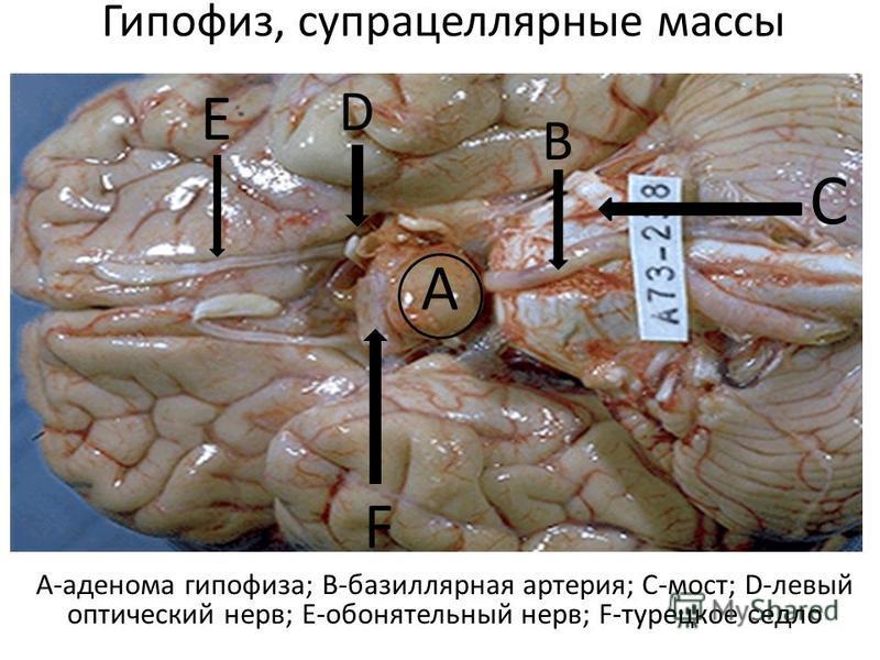 Гипофиз, супрацеллярные массы А-аденома гипофиза; В-базиллярная артерия; С-мост; D-левый оптический нерв; Е-обонятельный нерв; F-турецкое седло А В С D Е F