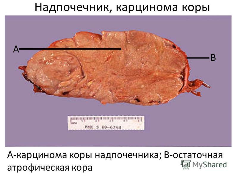 Надпочечник, карцинома коры А-карцинома коры надпочечника; В-остаточная атрофическая кора А В