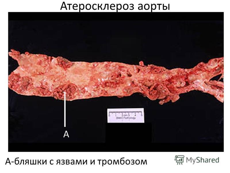 Атеросклероз аорты А-бляшки с язвами и тромбозом А