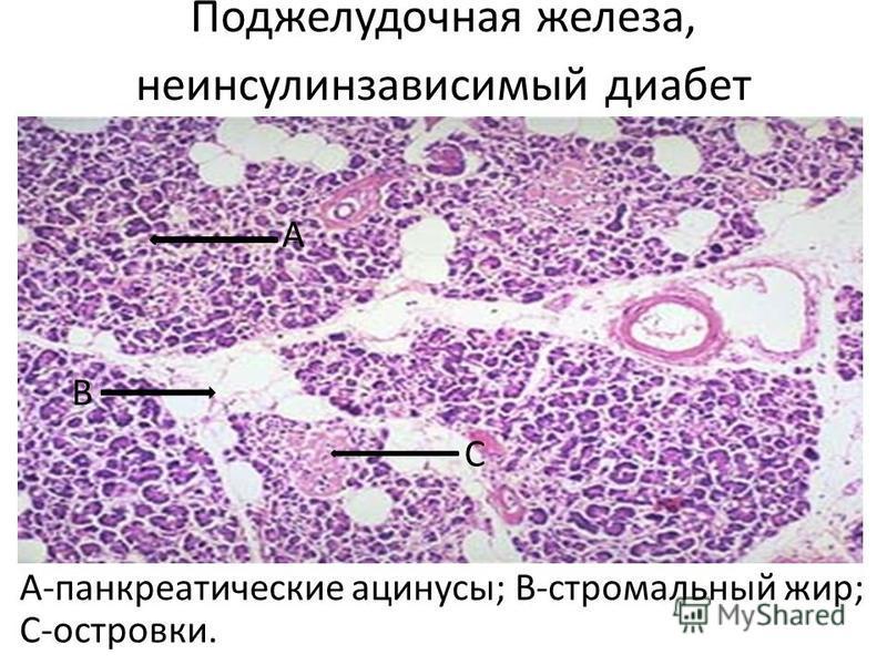Поджелудочная железа, не инсулинозависимый диабет А-панкреатические ацинусы; В-стромальный жир; С-островки. А В С