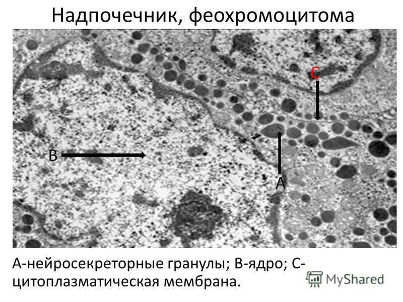 Надпочечник, феохромоцитома А-нейросекреторные гранулы; В-ядро; С- цитоплазматическая мембрана. А В С