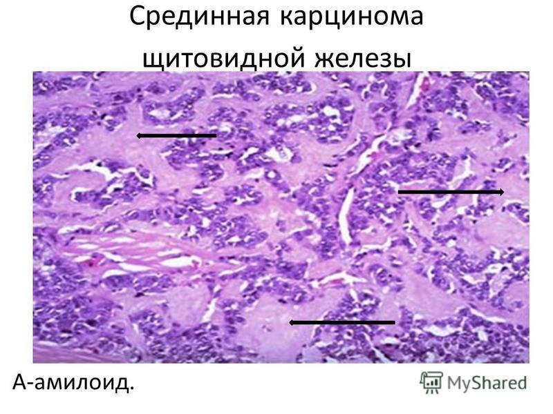 Срединная карцинома щитовидной железы А-амилоид.