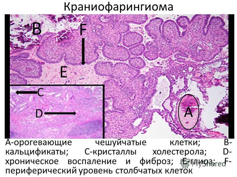 Краниофарингиома А-орогевающие чешуйчатые клетки; В- кальцификаты; С-кристаллы холестерола; D- хроническое воспаление и фиброз; Е-глиоз; F- периферический уровень столбчатых клеток А В С D Е F